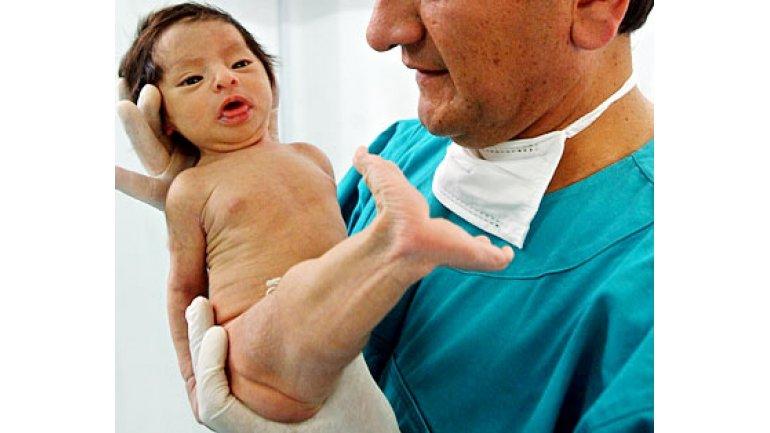 La ampliación de las venas varicosas durante el embarazo