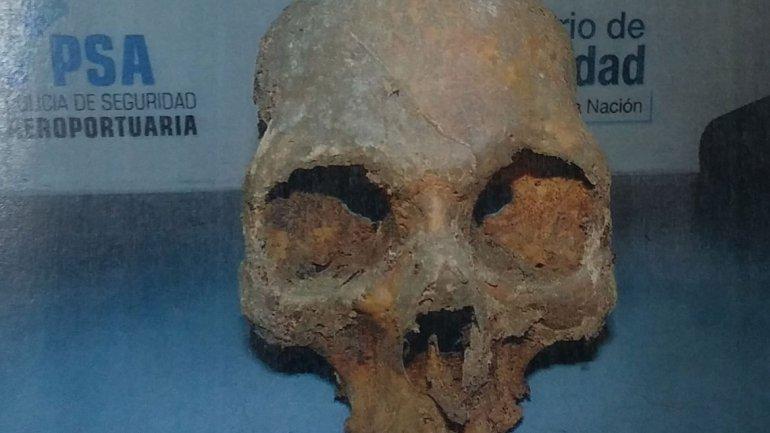 Turista fue demorado en Ezeiza por llevar un cráneo en la valija
