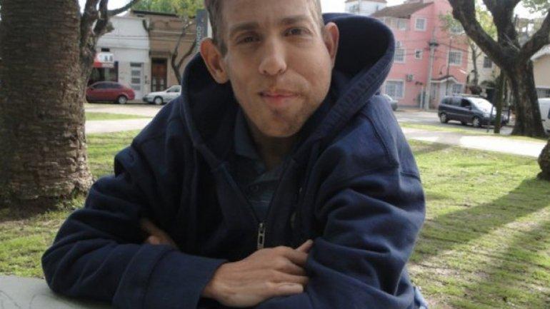 argentino con síndrome de Proteus necesita ayuda + PETICION