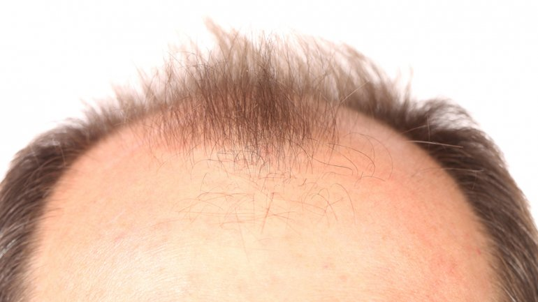 Las ampollas vishi para las mujeres contra la caída de los cabello