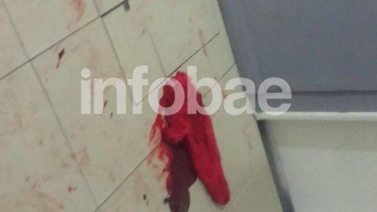 Sangre del hombre que fue apuñalado