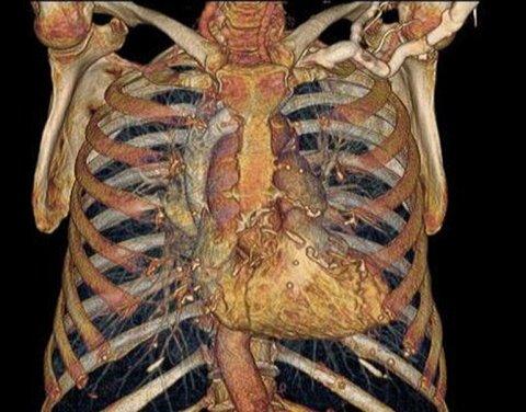 HD: el cuerpo humano por dentro, como nunca antes se vio ...