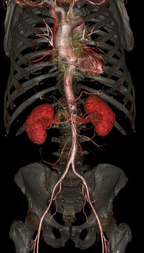 HD: el cuerpo humano por dentro, como nunca antes se vio - Infobae